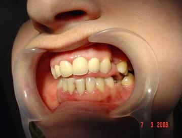 Edentatia de molar prim permanet, principala cauza perturbatoare a armoniei functiei ocluzale