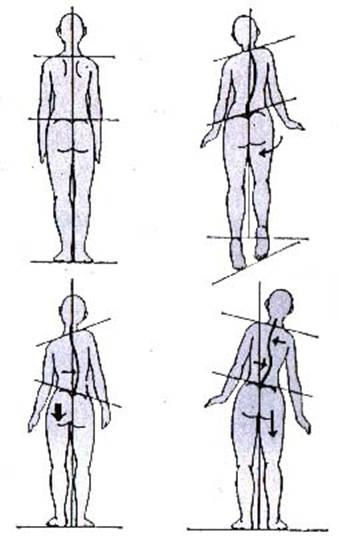 Coloanei vertebrale in wao