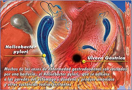 gastrita cronica antrala