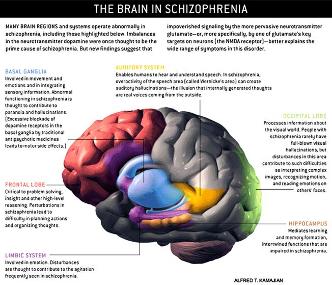 a description of schizophrenia as a devastating brain disorder affecting people worldwide of all age